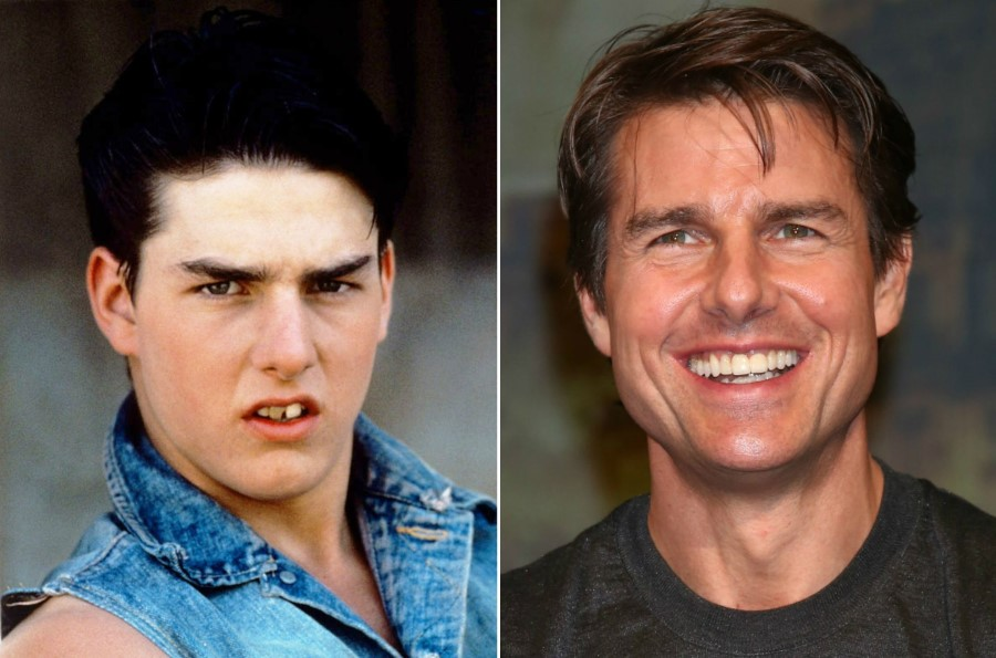 Tom Cruise Estetik